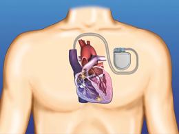 Herzschrittmacher1